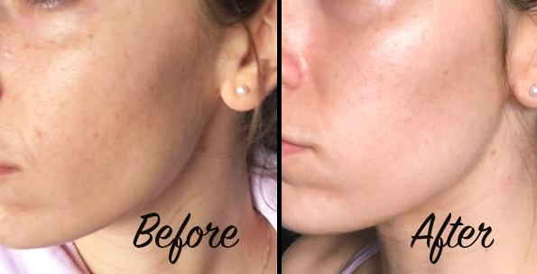 Sundaily Review - Skincare Routine
